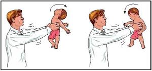 Sarsilmis-Bebek-Sendromu-0e_ff30f.jpg