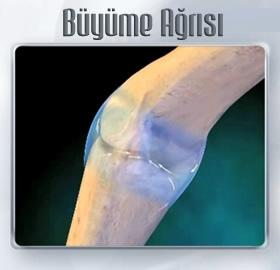 Cocuklarda-Buyume-Agrisi-Nedir-i_8be23.jpg