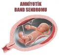 Amniyotik-Band-Sendromu_90e3d.jpg