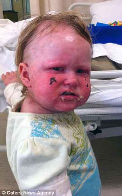 Bir gözüne kornea nakli yapılan küçük kız