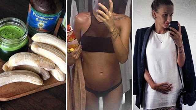 Günde 20 kilo muz yiyen hamile kadın şaşırttı-10