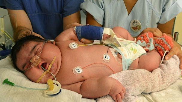 Jasleen Bebek Dünyanın En Şişman Doğan Bebeği Tam 6 Kilo 110 Gram Doğdu